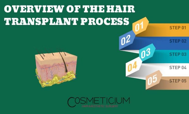 Hair Transplantation Process