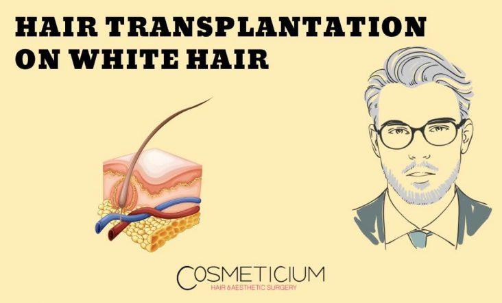 Hair Transplantation on Grey Hair