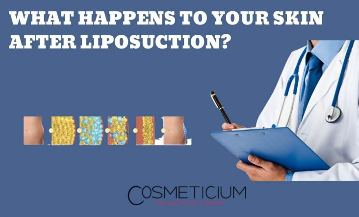 How Can I Tighten My Loose Skin After Liposuction?