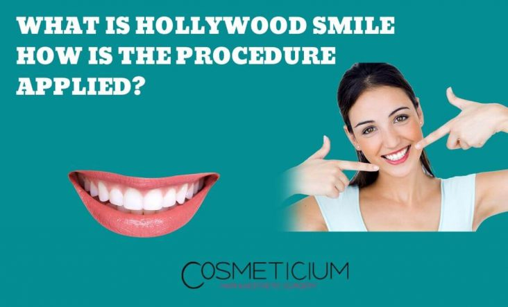 How is the Hollywood Smile Applied?