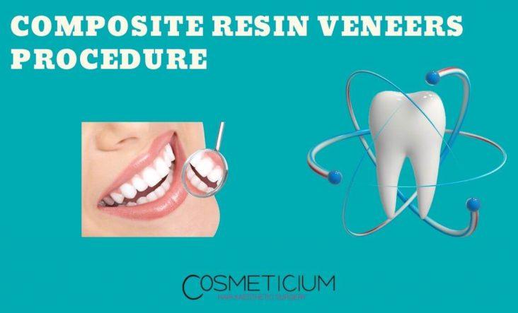 Composite Resin Veneers