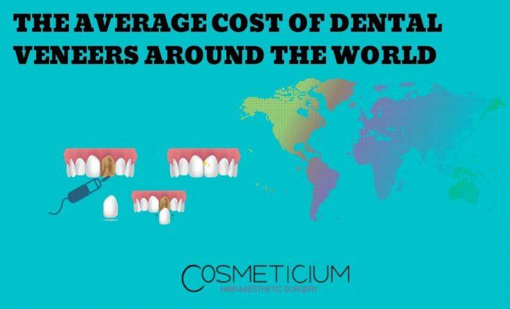 Average Cost of Dental Veneers