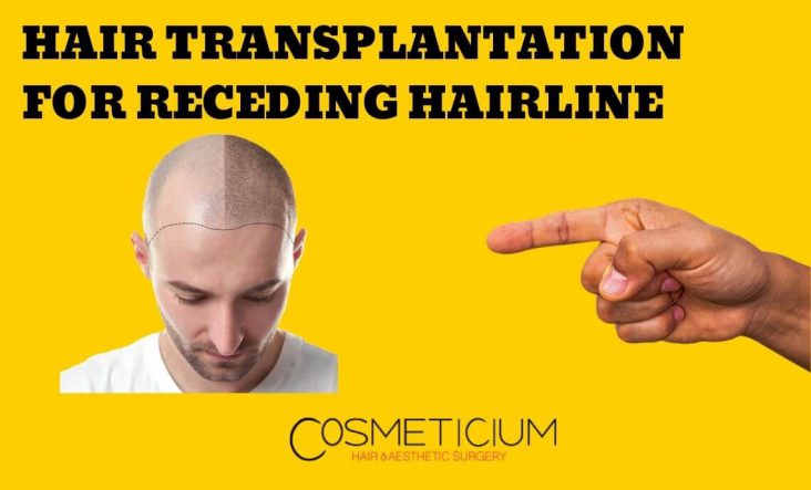 Hair Transplantation for Receding Hairline: Does It Really Work?