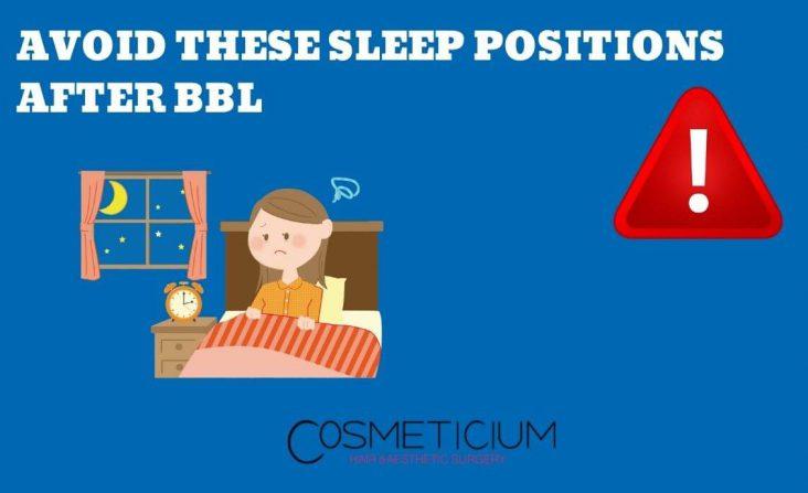 Sleep After BBL
