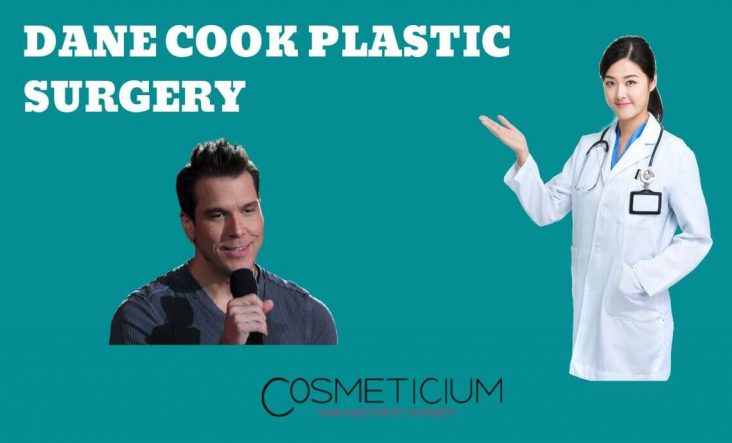 Did Dane Cook Have a Plastic Surgery?