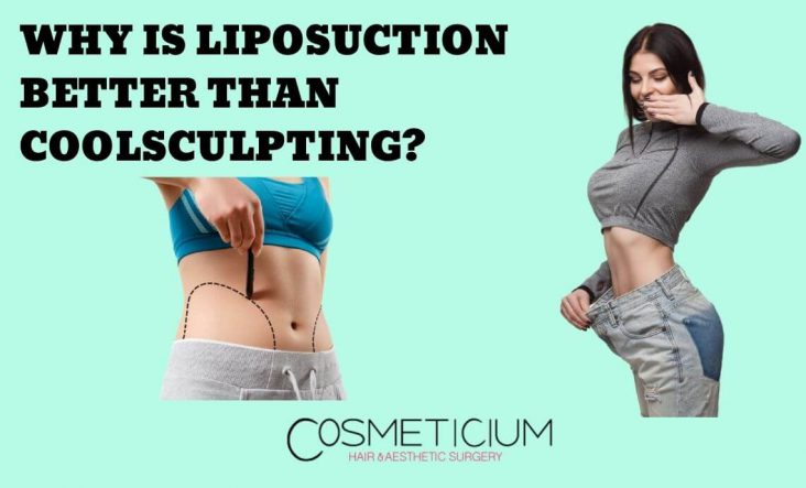 Liposuction is Better Than Coolsculpting
