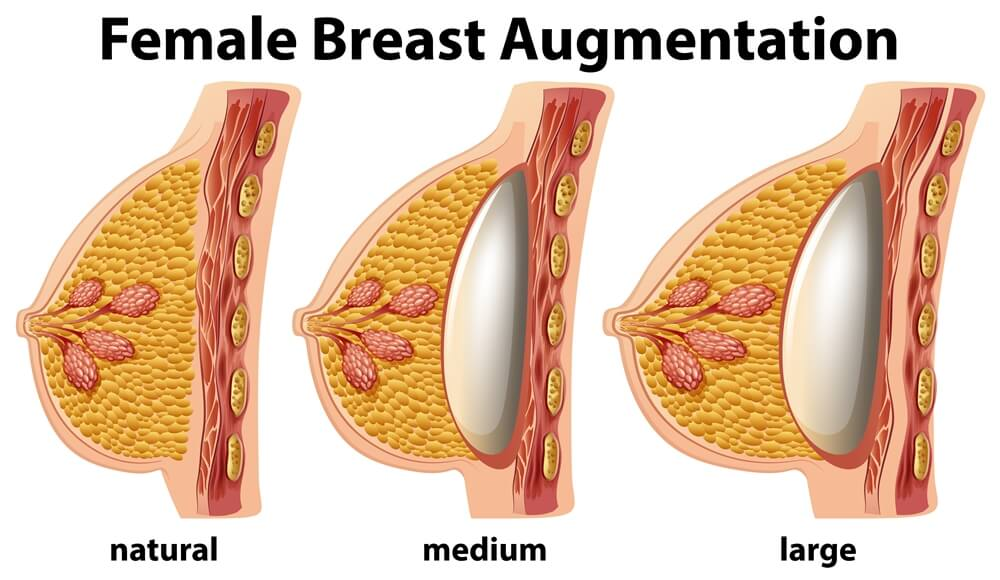 Female Breast Augmentation with 800cc Implants