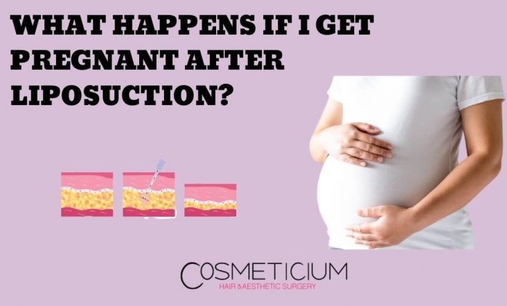 Pregnant After Liposuction
