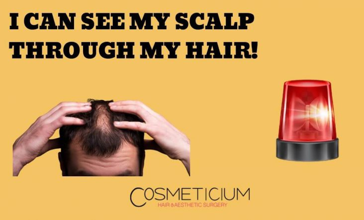 My Hair is So Thin That I Can See My Scalp through My Hair