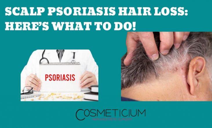 Scalp Psoriasis Hair Loss